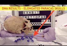 DNA Results in - Elongated Skulls, Nephilim, Giants & 6 Fingers - Alien Origin